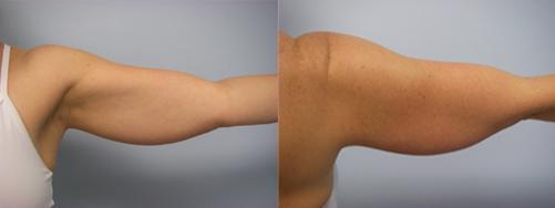41-Laser-Assisted-Liposuction-Before.jpg