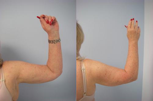 42-Laser-Assisted-Liposuction-After.jpg