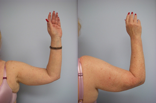 42-Laser-Assisted-Liposuction-Before.jpg