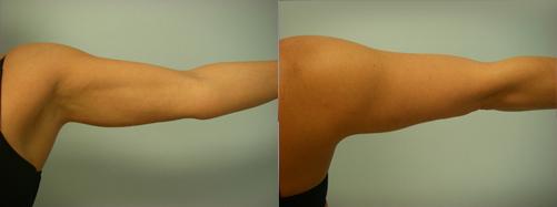 43-Laser-Assisted-Liposuction-After.jpg