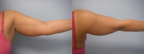 43-Laser-Assisted-Liposuction-Before.jpg