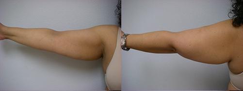 44-Laser-Assisted-Liposuction-Before.jpg