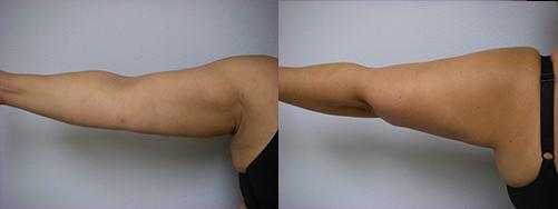 44-Laser-Assisted-Liposuction-After.jpg