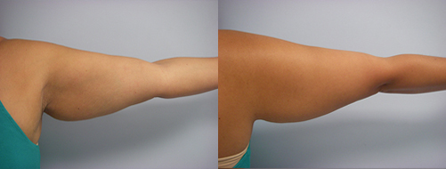 45-Laser-Assisted-Liposuction-Before.jpg