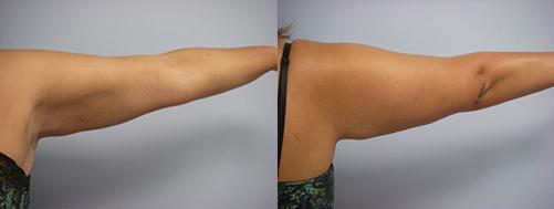 45-Laser-Assisted-Liposuction-After.jpg