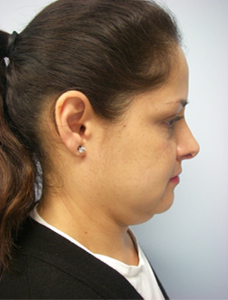46-Laser-Assisted-Liposuction-Before.jpg