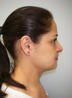 46-Laser-Assisted-Liposuction-After.jpg