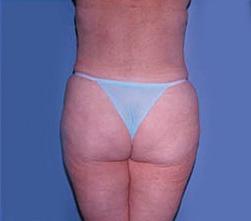 1-Liposuction-Back-After.jpg