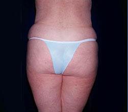 1-Liposuction-Back-Before.jpg