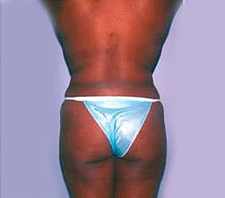 2-Liposuction-Back-After.jpg