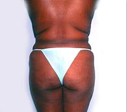 2-Liposuction-Back-Before.jpg