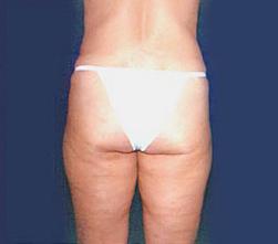 3-Liposuction-Back-After.jpg