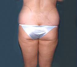 3-Liposuction-Back-Before.jpg