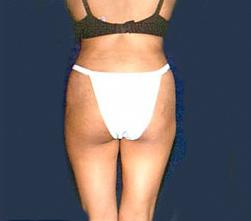 4-Liposuction-Back-After.jpg