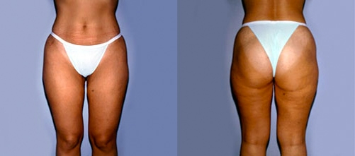 5-Liposuction-After.jpg