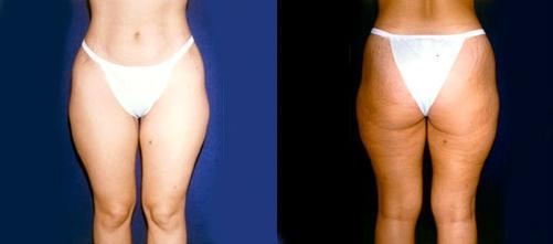 5-Liposuction-Before.jpg