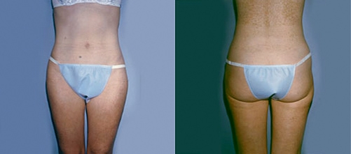 6-Liposuction-After.jpg