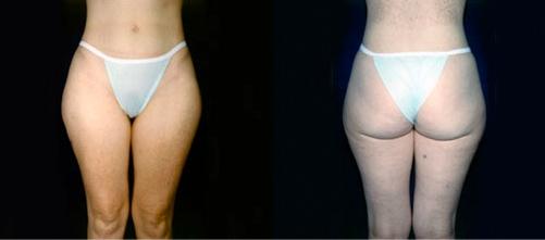 6--Liposuction-Before.jpg