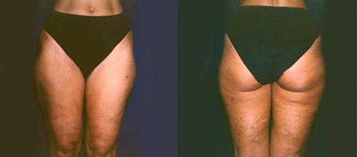 7-Liposuction-Before.jpg