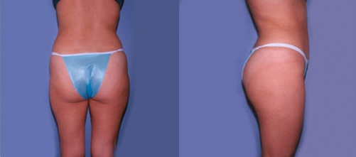 8-Liposuction-AFter.jpg