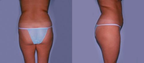 8-Liposuction-Before.jpg