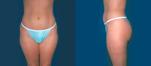 9-Liposuction-Before.jpg