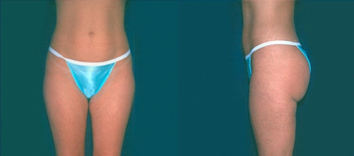9-Liposuction-After.jpg