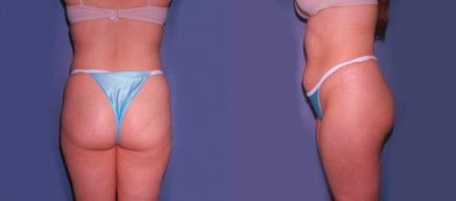 10--Liposuction-Before.jpg