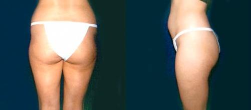 11-Liposuction-Before.jpg