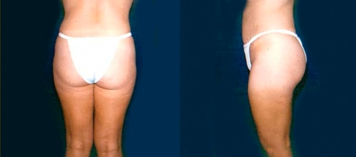 12-Liposuction-After.jpg