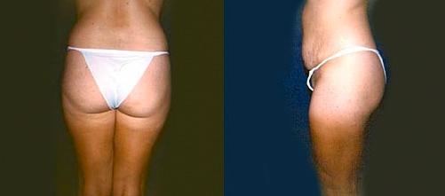 12-Liposuction-Before.jpg