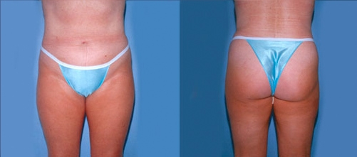 13-Liposuction-After.jpg