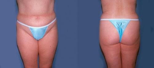 13-Liposuction-Before.jpg