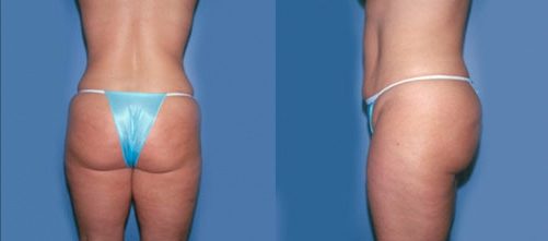 14-Liposuction-After.jpg