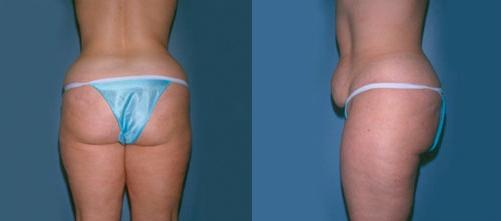 14-Liposuction-Before.jpg