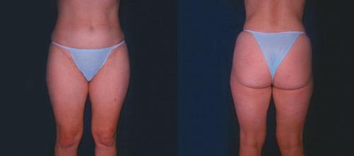 15-Liposuction-Before.jpg