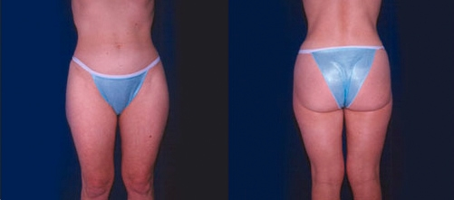 15-Liposuction-After.jpg