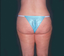 16-Liposuction-After.jpg