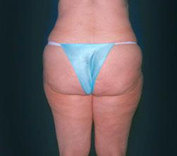 16-Liposuction-Before.jpg