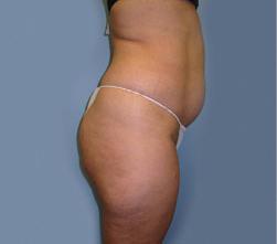 17--Liposuction-Before.jpg