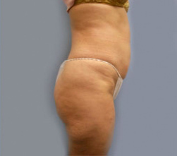 17--Liposuction-After.jpg