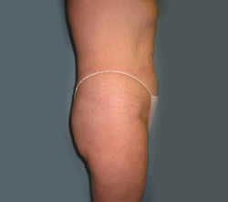 18-Liposuction-After.jpg