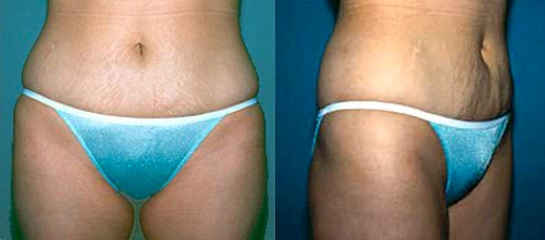 19-Liposuction-After.jpg