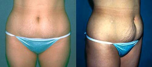 19-Liposuction-Before.jpg