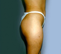 20-Liposuction-After.jpg