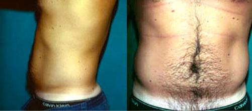 22-Liposuction-Before.jpg