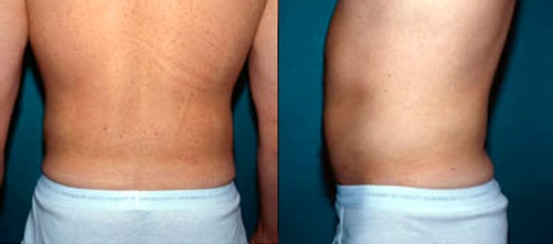 23-Liposuction-After.jpg