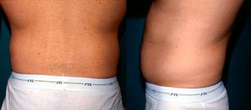 23-Liposuction-Before.jpg