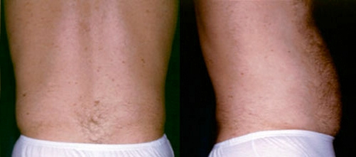 24-Liposuction-After.jpg