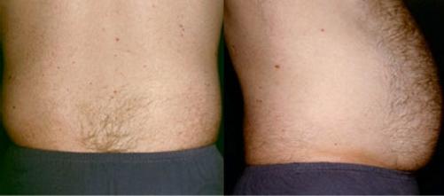 24--Liposuction-Before.jpg